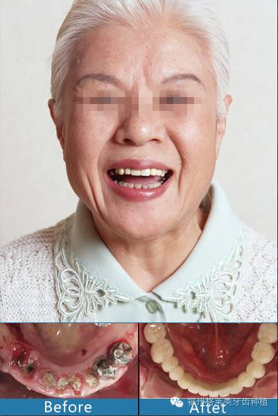 种植牙是长期的吗?
