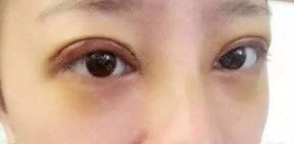 第六天,眼圈黄的不要不要的,谁能告诉我他要黄多长时间啊!脸也不太肿了。期待消肿!现在开始每天大量的热敷了!—————————————————————————————
