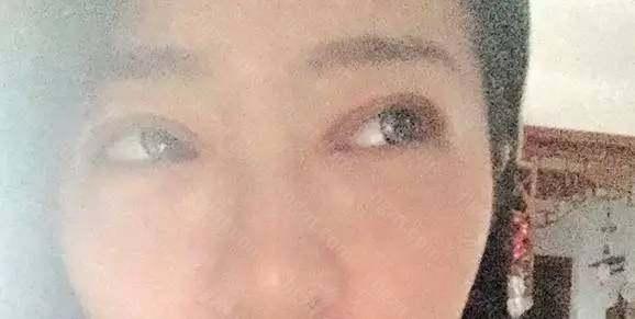 …………我一头黑线…………我说我这双眼皮还没恢复好!