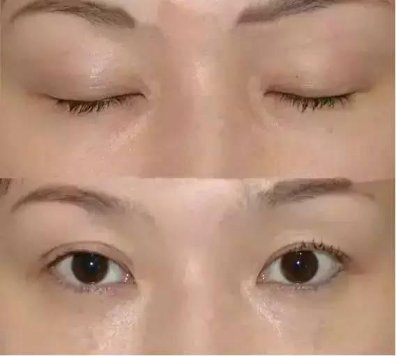 埋线双眼皮效果怎么样?