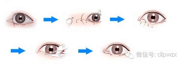 开眼角眼睛会变大吗?