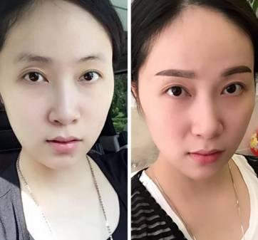 韩式半长期眉毛多久掉痂?
