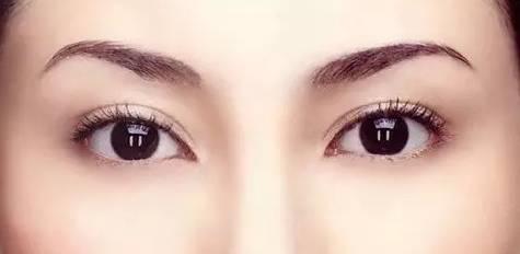 埋线双眼皮自然吗?