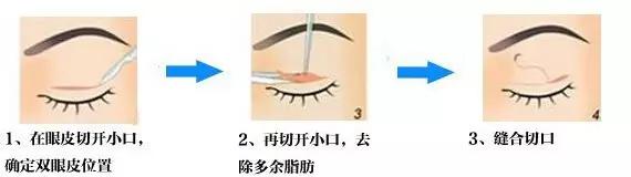 切开式双眼皮效果怎么样?