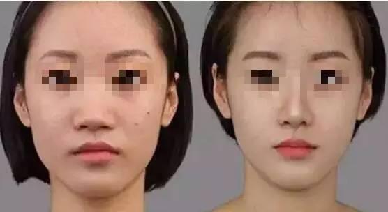 瘦脸针会反弹吗?
