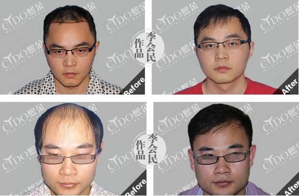 植发后效果怎么样?有保证么?