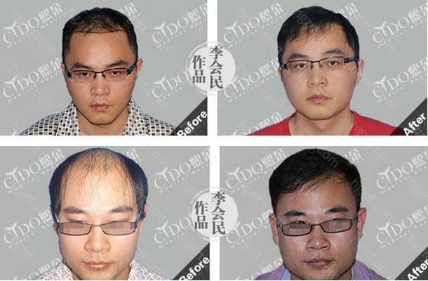 头发种植后多久能恢复?头发移植后的一周左右