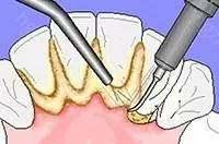 那…牙结石又是什么呢?