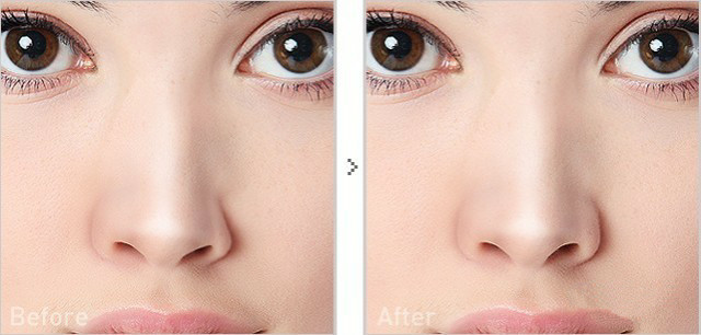 假体隆鼻多久能恢复自然?
