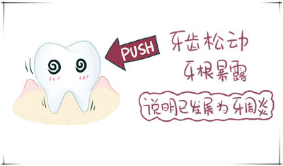 有蛀牙怎么办?