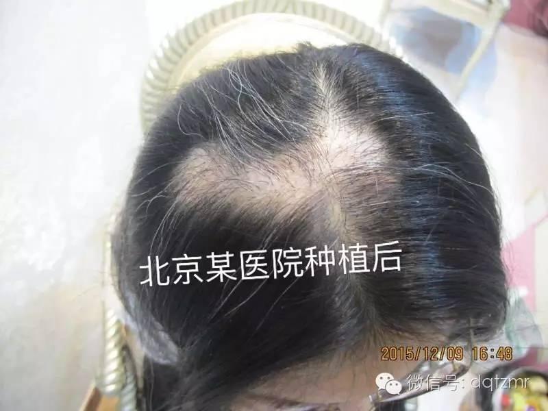 植发可靠么?一般需要多少钱多少时间?