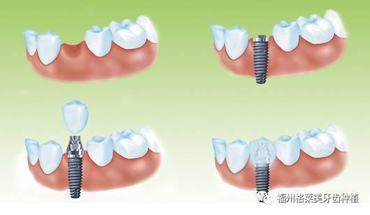 种植牙有什么优点?