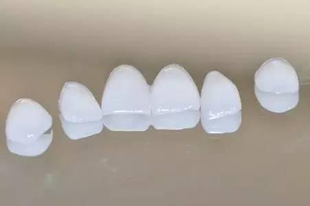 牙齿贴面效果好吗