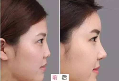 瘦脸针瘦脸效果怎么样?