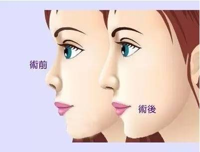 隆鼻会透光吗?