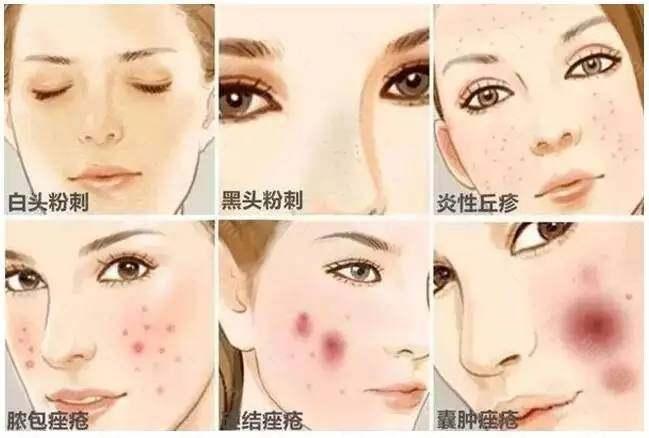每个人都会遇到各种肌肤问题