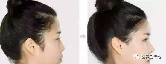 玻尿酸隆鼻鼻梁会变宽吗?