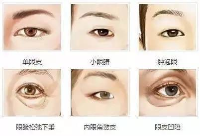 双眼皮手术哪里都可以做么?