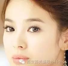 韩式双眼皮效果怎么样啊?一般多少钱
