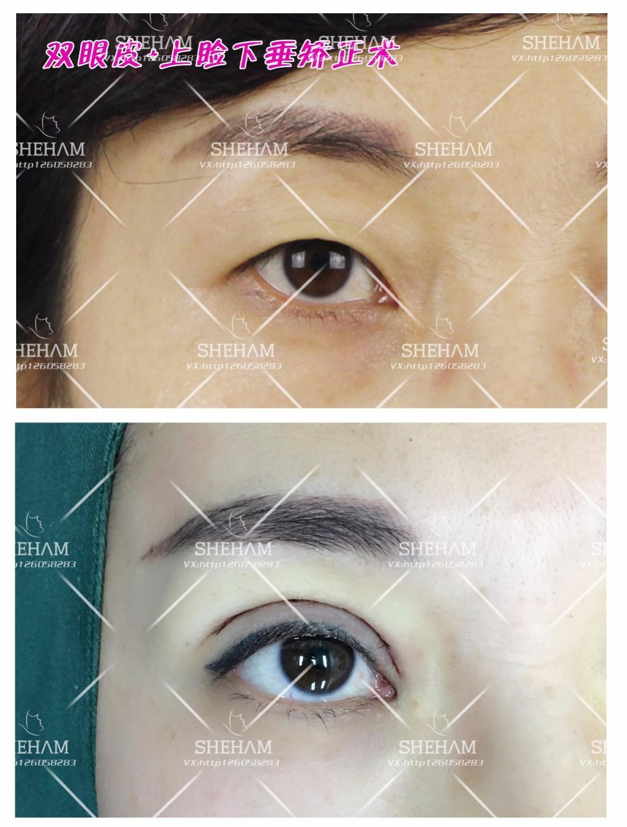 肿泡眼时候哪种双眼皮?