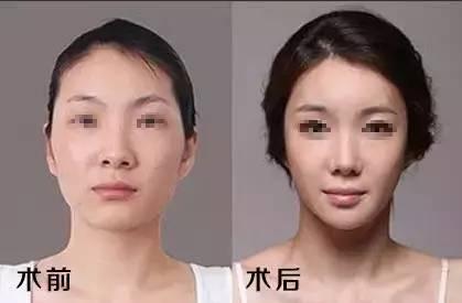 磨骨瘦脸安全吗?