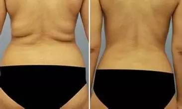 抽脂减肥能减多少斤?