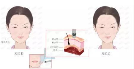 注射瘦脸针疼不疼啊?