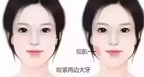 瘦脸针真的管用吗?