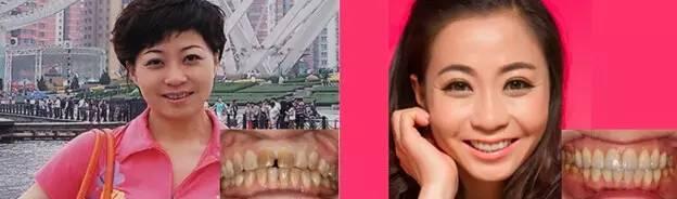 牙齿超薄瓷贴面容易掉吗?