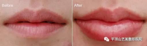 玻尿酸丰唇能顶多久啊?