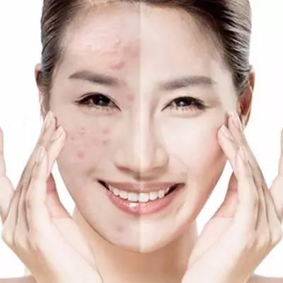 瘦体蛋白瘦脸效果真的好吗?