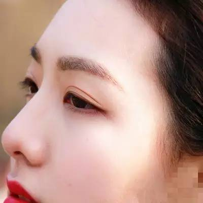 切开双眼皮术后疤痕多久能消失?