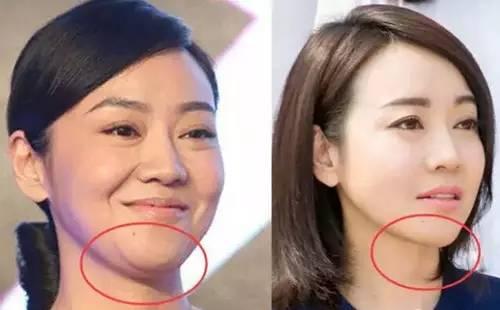 面部溶脂效果真的好吗?