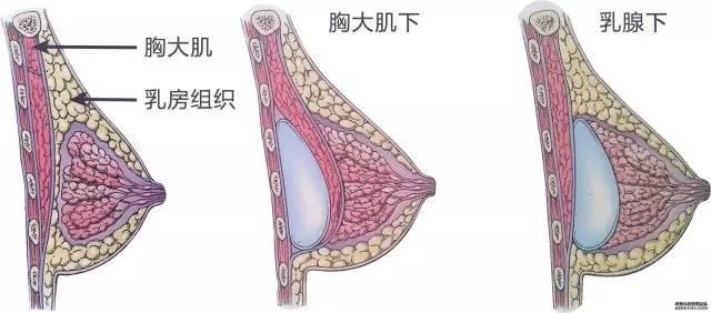 假体隆胸取出多久恢复?