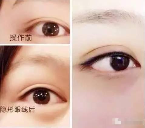 美瞳线有什么优势?