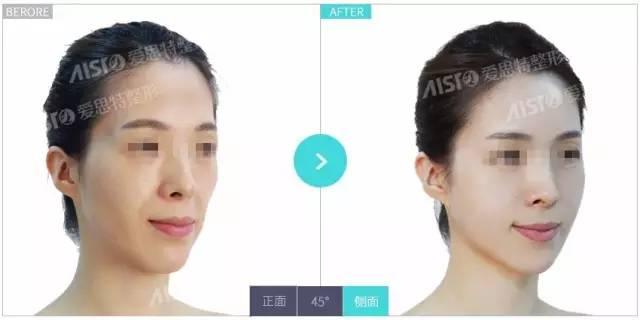 注射玻尿酸隆鼻多久定型?