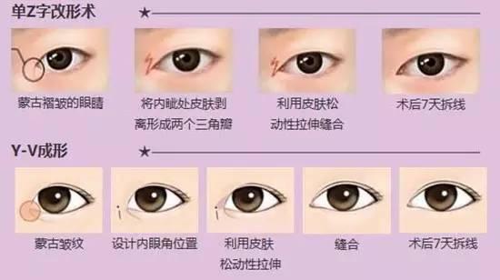 开眼角和双眼皮一起做好吗?