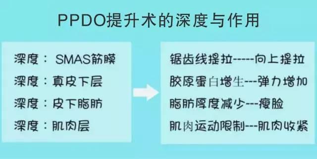 什么是PPDO提升术
