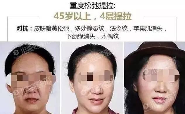 面部线雕可以长期提升么?