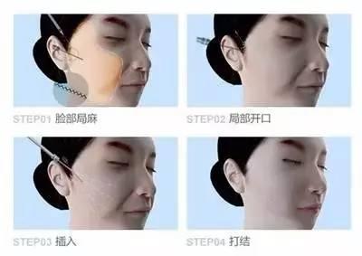 面部提升能维持多长时间啊?