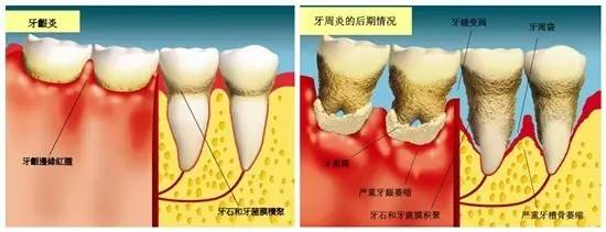 牙齿掉了必须要及时修复吗?