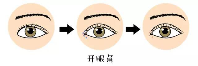 韩式双眼皮术多久能消肿?