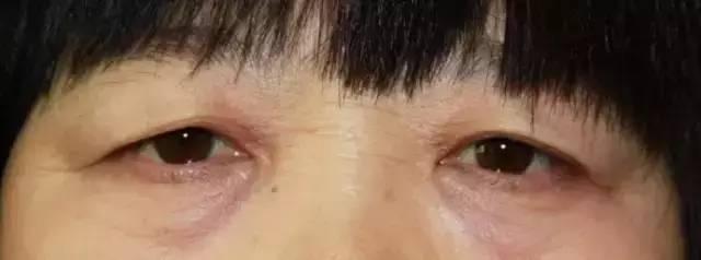 深蓝射频眼周除皱能改善眼袋吗?