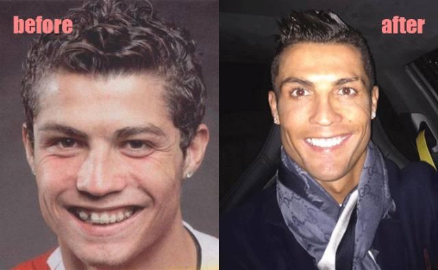 牙齿矫正改变脸型吗?