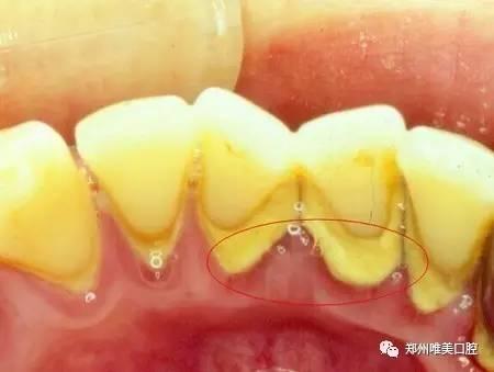 定期洗牙能防止牙齿脱落吗?