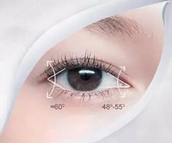 双眼皮哪种类型好看?