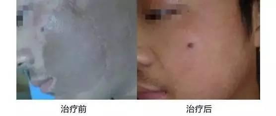 激光去疤痕多少钱?