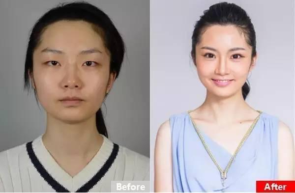 做双眼皮有几种方法?