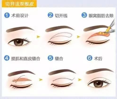 做双眼皮一般多少钱?