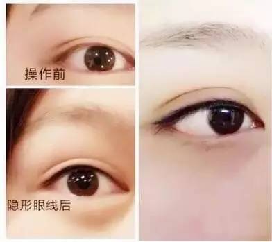 为什么现在连明星都只要做隐形美瞳线不做眼线?